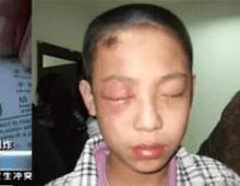 8岁男孩眼球被融化,罪魁祸首家家户户都有,家长注意!