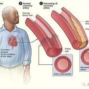 301曹丰团队构建靶向动脉粥样硬化斑块的诊疗一体化纳米探针