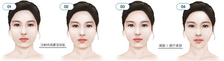 瘦脸眉图片步骤