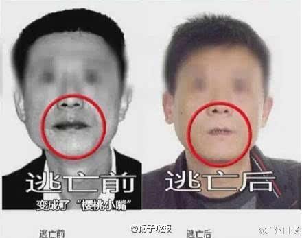 了解嘴巴内部结构图