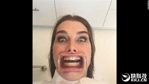 美国人自拍性交视频_1月23日,美国女星波姬·小丝在看牙医时搞怪自拍.
