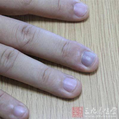 结语:以上就是小编给大家带来的关于如何通过指甲上的某些痕迹来判断图片
