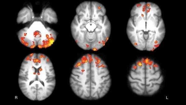 以健康受试者为对照对象,轴向统计地图显示出了多发性硬化症(MS)患者丘脑功能连接减少的区域。患者小脑、额叶及枕叶皮质、尾状核和丘脑两侧的纤维束明显较少。图片来源:北美放射学会 八周之后,研究人员会通过认知测试并按照基线标准,利用3-Tesla静息状态功能磁共振成像(RS-fMRI)对患者进行评估。De Giglio说:通过功能磁共振成像,我们可以研究哪些大脑区域被同时激活,并给出具有特定大脑回路的某些区域的参与情况。 在随访过程中,12名视频游戏组患者脑区默认网络后组件中的丘脑功能连接明显增强,这种网