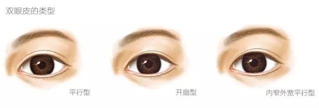 双眼皮大致可以分为三种类型:平行型