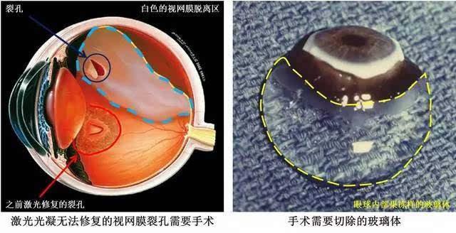 玻璃体是我们眼睛内体积最大的结构
