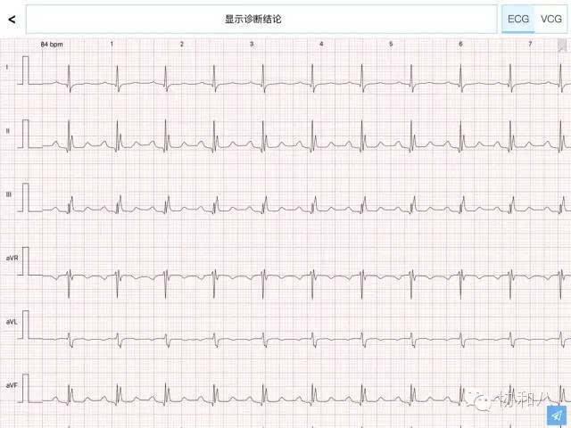 心脏结构图简易图手绘