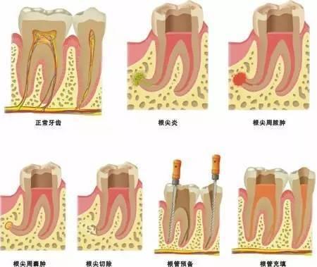 牙齿神经结构示意图