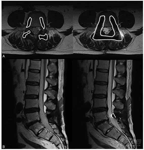 观察脊柱内固定周围的解剖结构,mri semac-vat 技术可见度较标准 mri