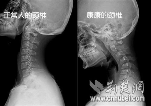 16岁男孩 颈椎反弓 近45 低头玩手机成最大祸根 图