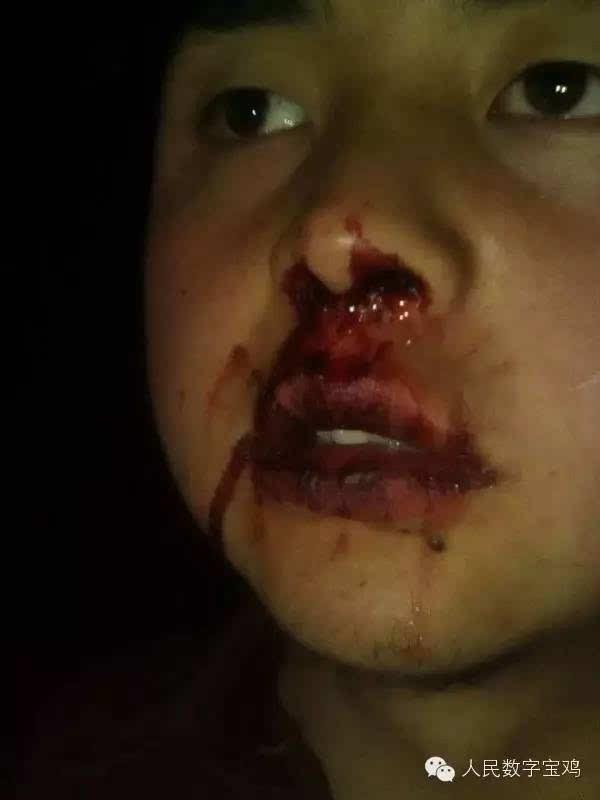 [宝鸡女生]新闻打男生羽毛情急打伤男生挠老师的女生脚图片