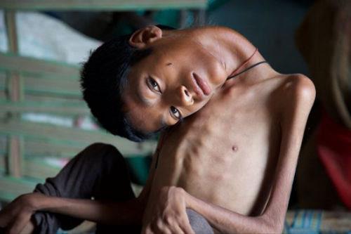 印度男头倒转180度下垂术后终恢复正常(图))男孩照片