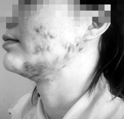 """注射""""溶脂针""""后感染的患者 图片由医院提供-23名患者打 溶脂针 后毁图片"""