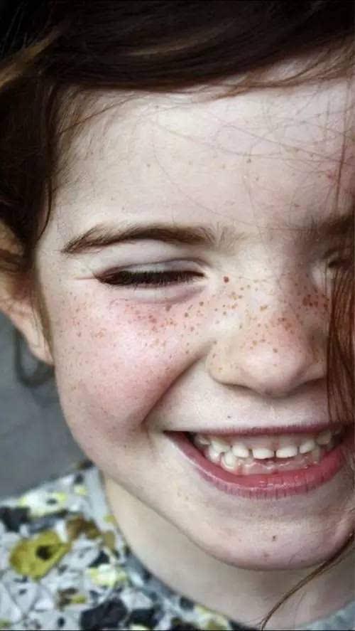 女孩脸上长满雀斑,罪魁祸首竟是它