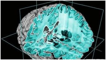 与潜意识对话 快速引导大脑的催眠技术