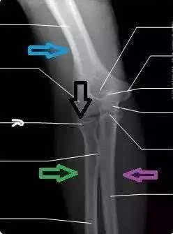其它 正文  先说一下肘关节的解剖.