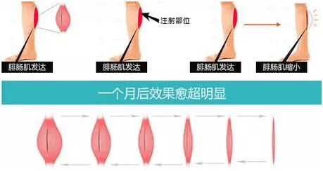 瘦腿针什么原理_瘦腿针原理动画图片