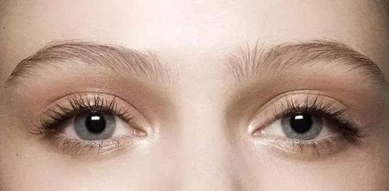 你适合欧式大平行双眼皮吗?