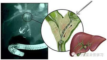 ERCP指南学习 胆管恶性狭窄今天学习一下ERCP指南的第二部分,胆管狭窄的诊断及治疗 来源 新闻100