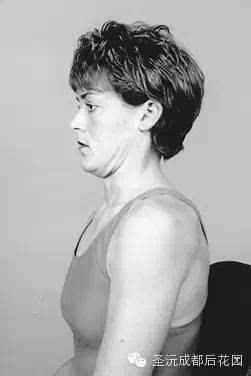 麦肯基疗法 7步告别颈椎腰椎烦恼