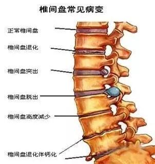中医推拿,针灸能有效治疗腰酸背痛