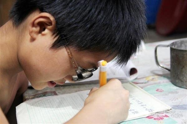 11岁男孩双眼近视2200度 镜片比啤酒瓶厚