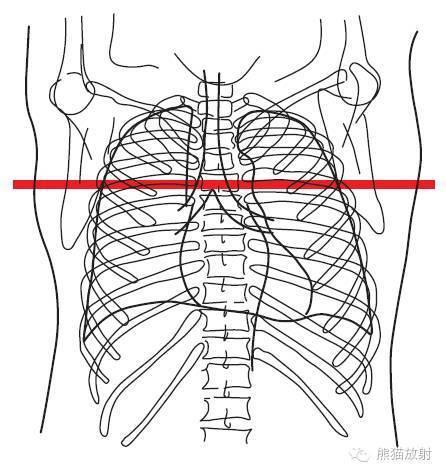 中动脉结构图红蓝手绘