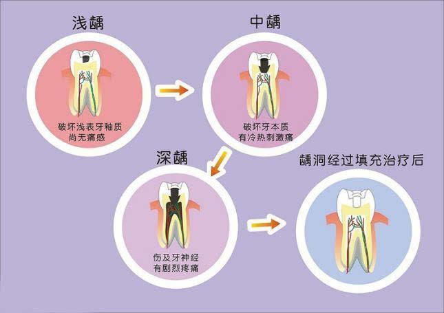 用香油熏虫牙步骤图解
