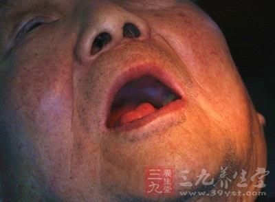 嘴角起泡怎么办 各种方法控制嘴角起泡