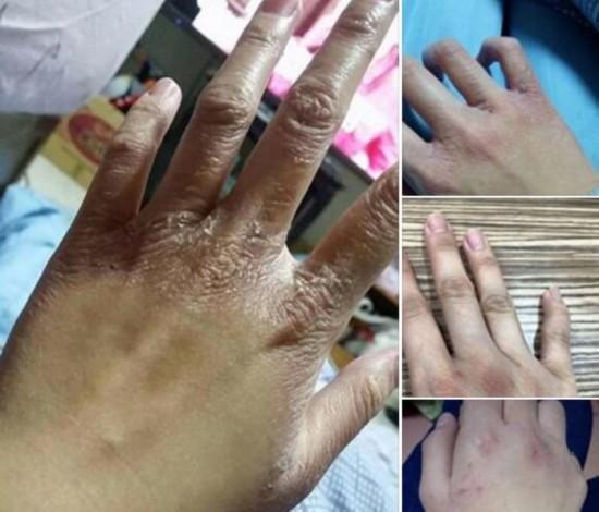 网友曝台湾未满16岁洗头工 洗到手烂月薪3千(图)