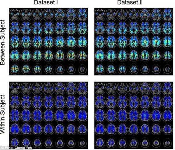 """美科学家发现每个人脑袋都有专属""""指纹"""":可准确辨认身份"""