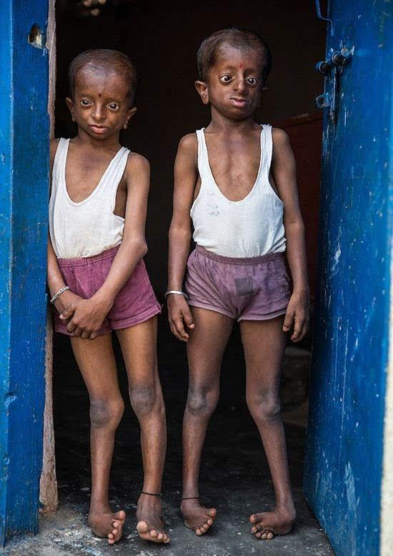 (组图)胆小慎入!两兄弟身患怪病没有牙齿摸样异于常人不敢出门