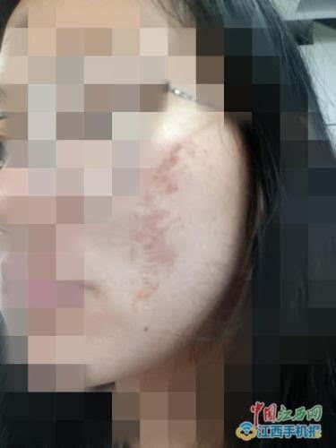 多名大学生惨遭毁容体验化妆为何如此结果?