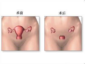 子宫肌瘤次全切后遗症