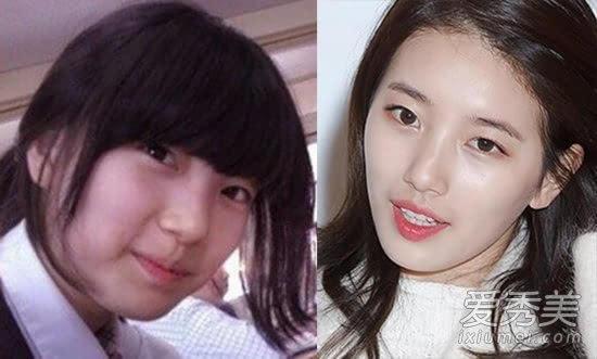 裴秀智泫雅申世京 90后韩国女星整容全揭秘