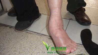 老人脚肿是怎么回事