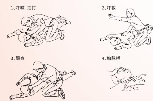 急救技术从心肺复苏学起-搜狐