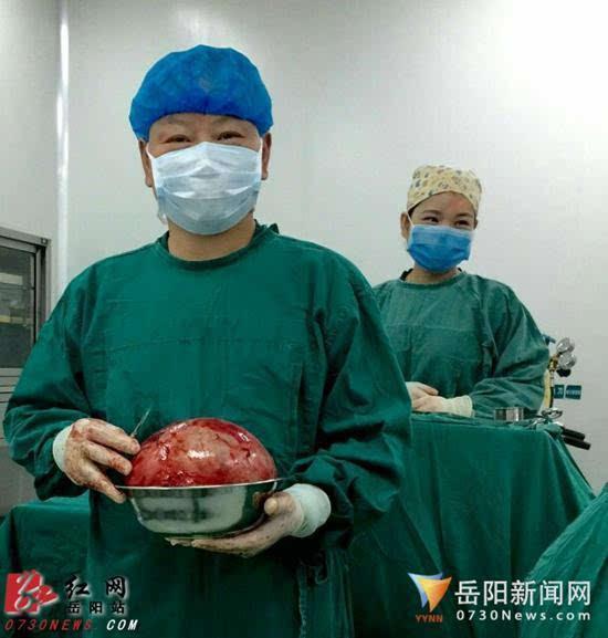 岳阳市二医院成功切除3.84公斤巨大肿瘤