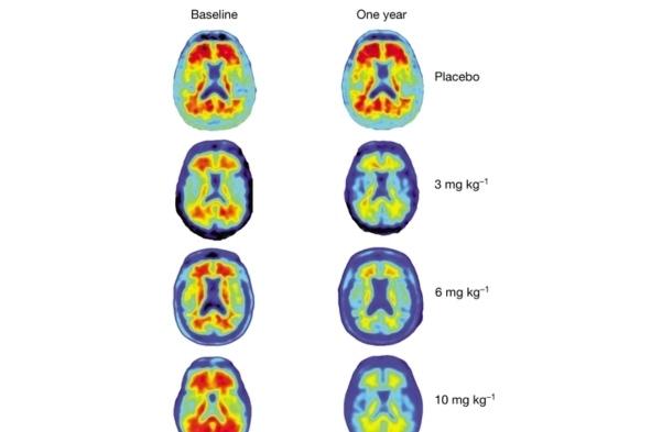 阿尔茨海默病药物试验取得突破的照片 - 2
