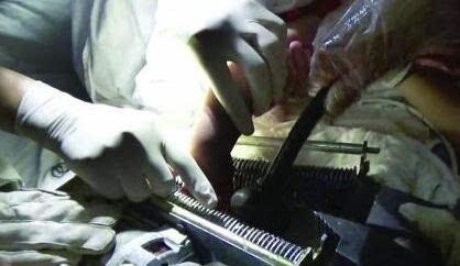 女人阴道被男入拇_1岁幼童右手卡进碎纸机 四根手指被搅碎